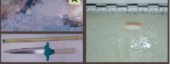 ▲ 박용수씨 위에서 발견된 약(오른쪽), 박용수씨 가방에서 발견되었지만 박용수씨 지문이 없는 칼(왼쪽 아래), 박용철씨 혈흔이 묻어 있지만 박용수씨 지문이 없는 칼(왼쪽 위).