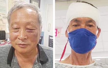 ▲한재열[좌측]씨와 박우하[우측]씨는 지난 7월 9일 아마존 배달원으로 부터 폭행을 당해 부상을 입었다고 밝혔다.